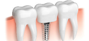 Veltkamp Family Dentistry | Lynden, WA Dentists | Dental Implants Available