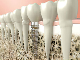 Veltkamp Family Dentistry | Lynden, WA Dentists | Dental Implants