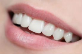 Veltkamp Family Dentistry | Lynden, WA Dentists | Porcelain Veneers