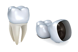 Veltkamp Family Dentistry | Lynden, WA Dentists | Porcelain Dental Crowns